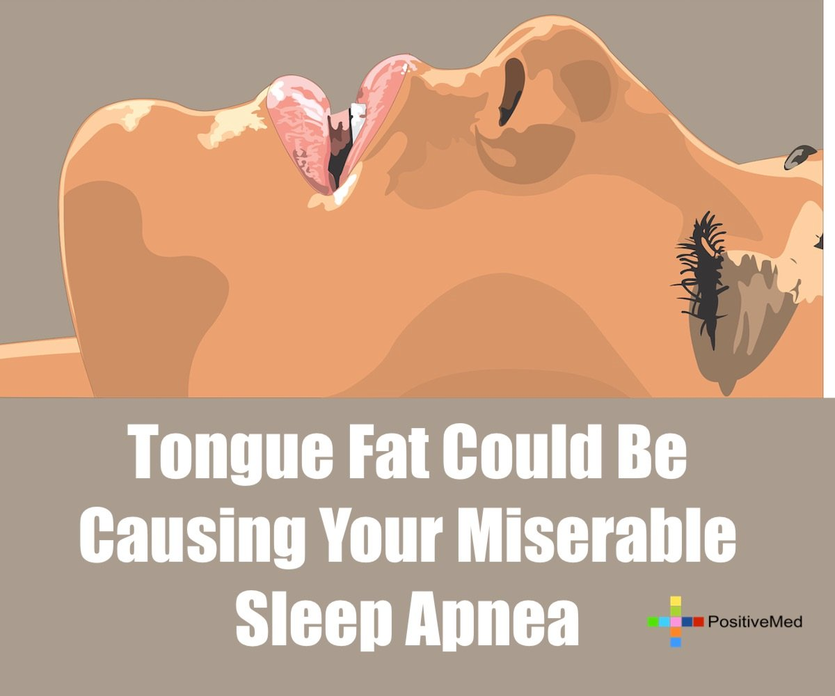 Tongue Fat Could Be Causing Your Miserable Sleep Apnea