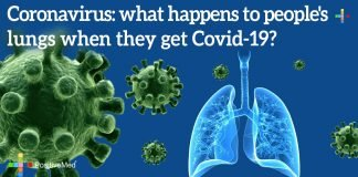 Coronavirus: What Happens to People's Lungs When They Get Covid-19?