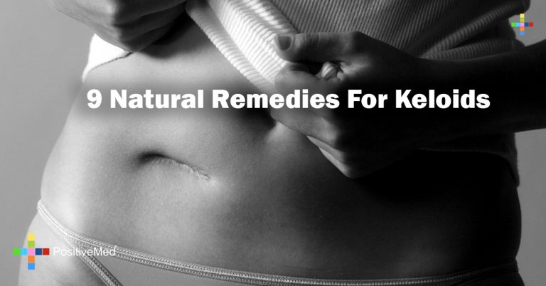 9 Natural Remedies For Keloids