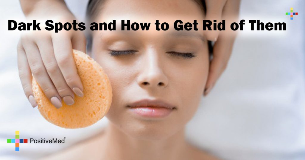 Dark Spots and How to Get Rid of Them