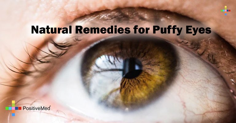 Natural Remedies for Puffy Eyes