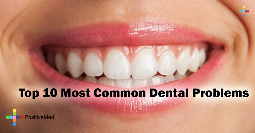 Top 10 Most Common Dental Problems