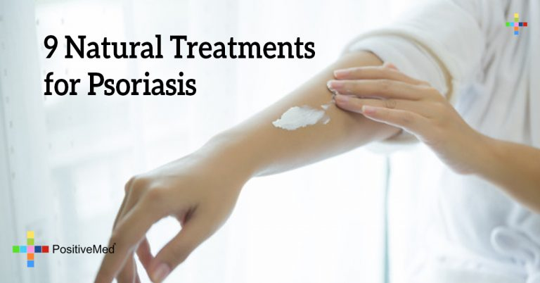 9 Natural Treatments for Psoriasis