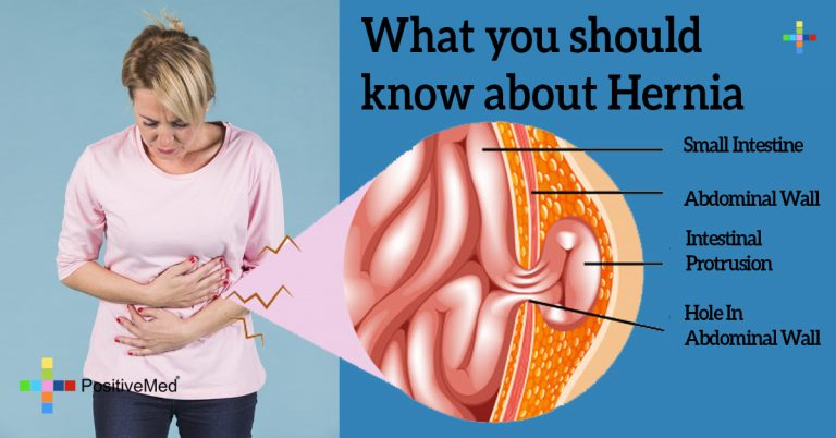 What you should know about Hernia