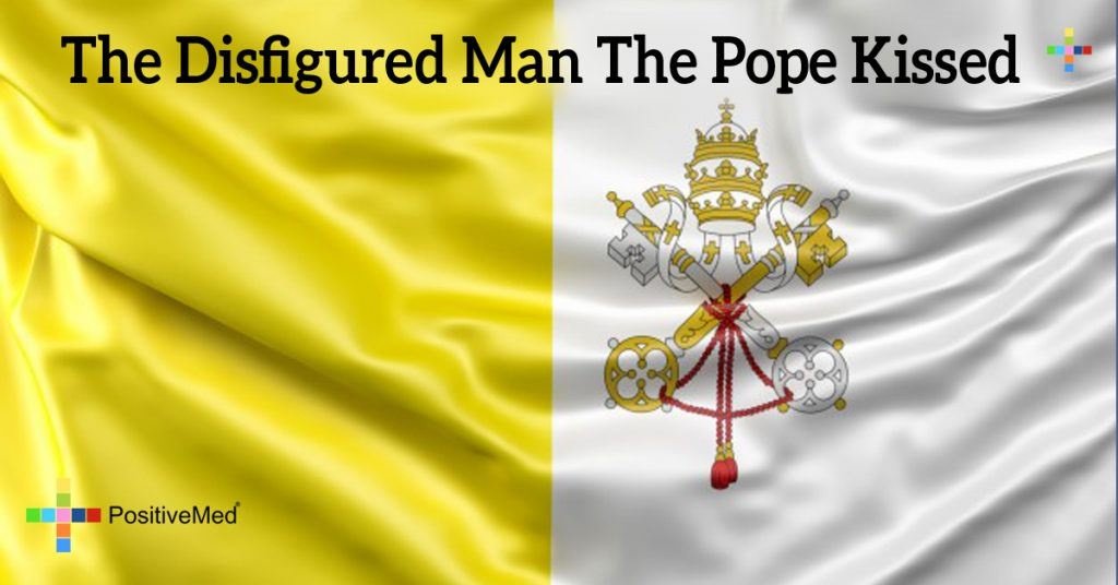 The disfigured man the Pope kissed