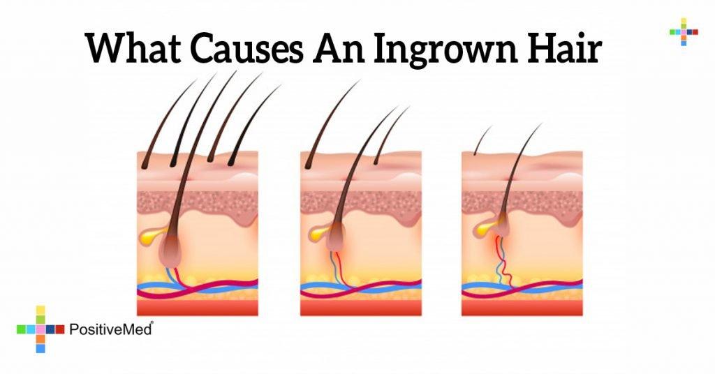 What Causes An Ingrown Hair