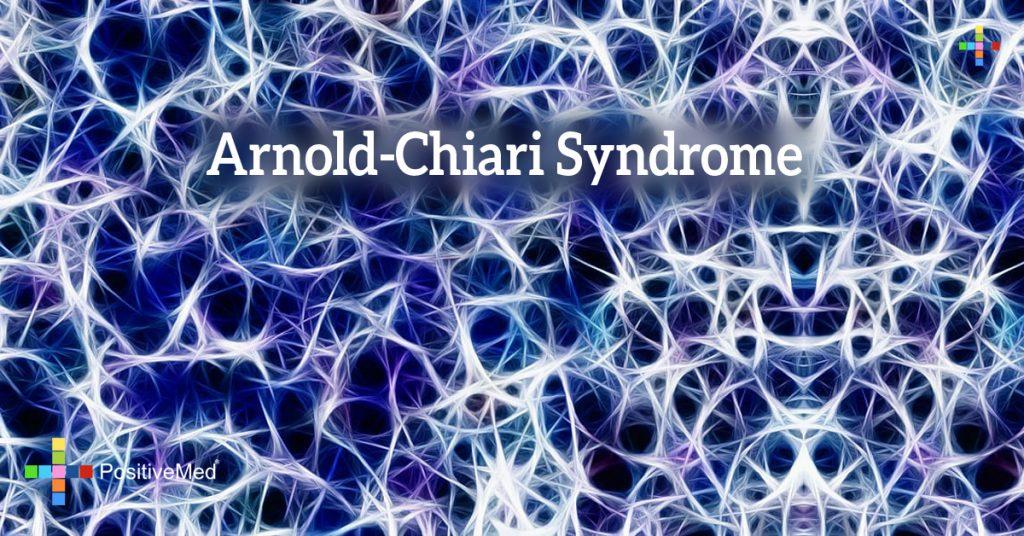 Arnold-Chiari Syndrome