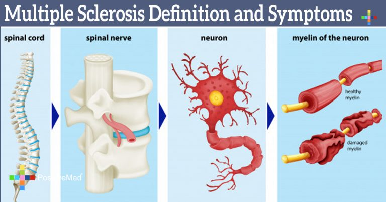 Multiple Sclerosis Definition and Symptoms