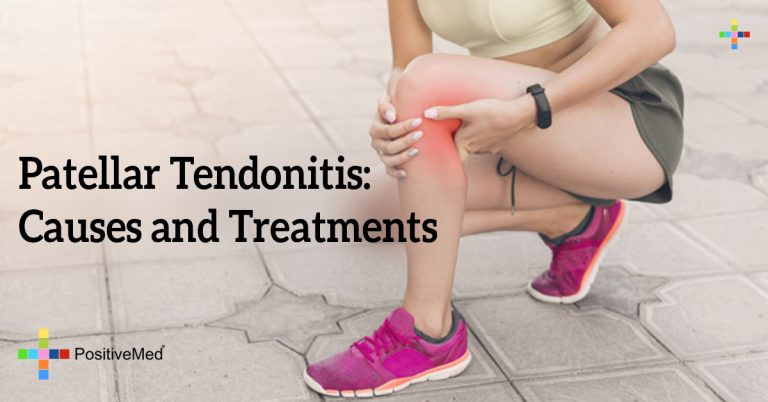 Patellar Tendonitis: Causes and Treatments