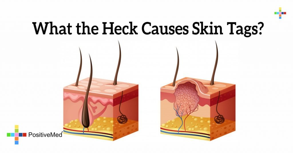 What the Heck Causes Skin Tags?