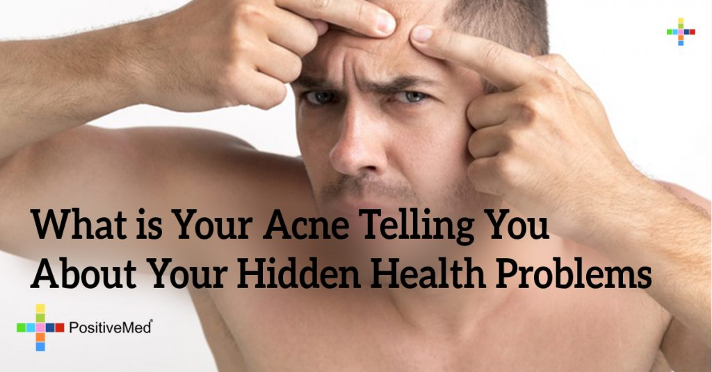 What is Your Acne Telling You About Your Hidden Health Problems