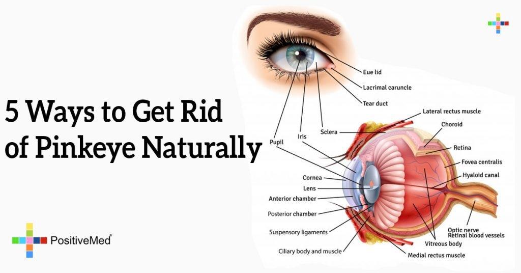 5 Ways to Get Rid of Pinkeye Naturally