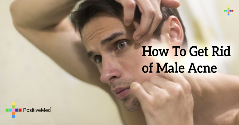 How To Get Rid of Male Acne
