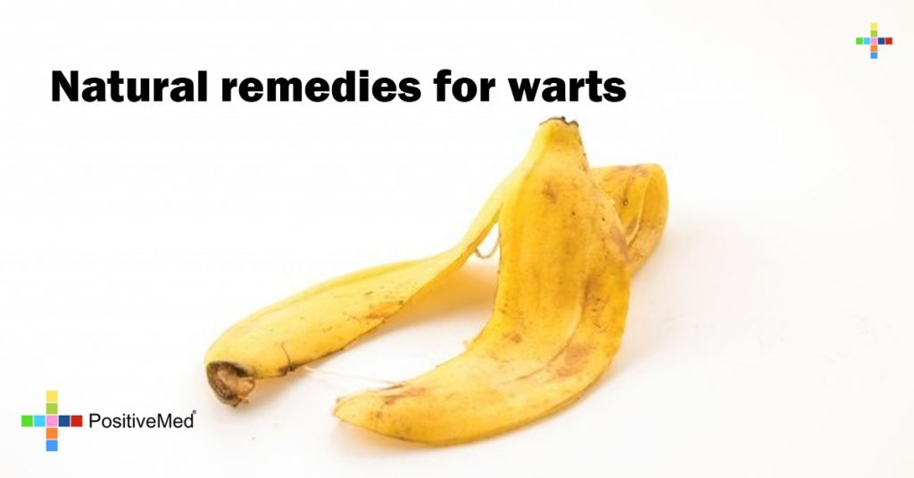 Natural remedies for warts