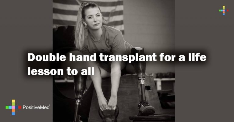 Double hand transplant for a life lesson to all