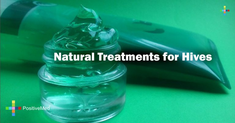 Natural Treatments for Hives