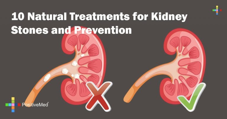 10 Natural Treatments for Kidney Stones and Prevention