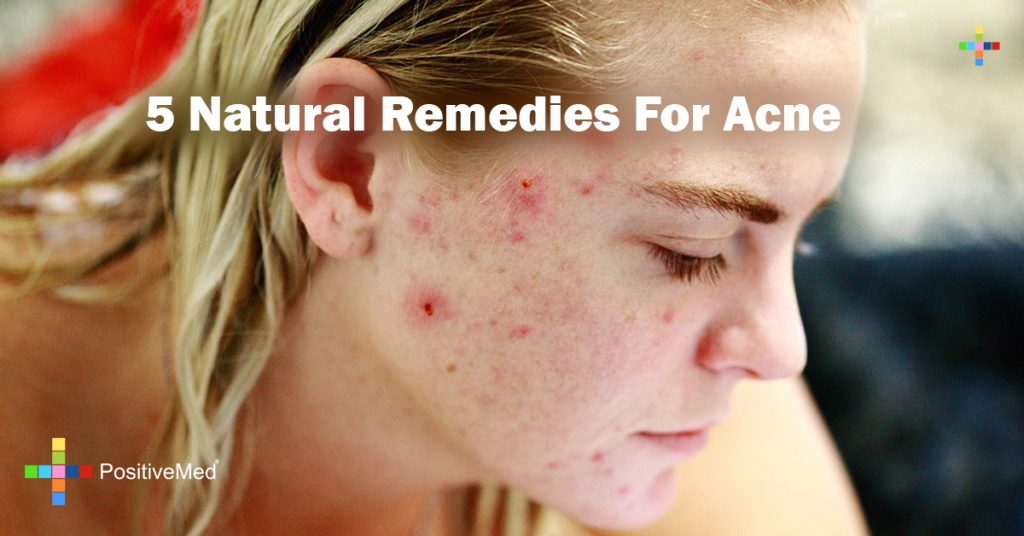 5 Natural Remedies For Acne