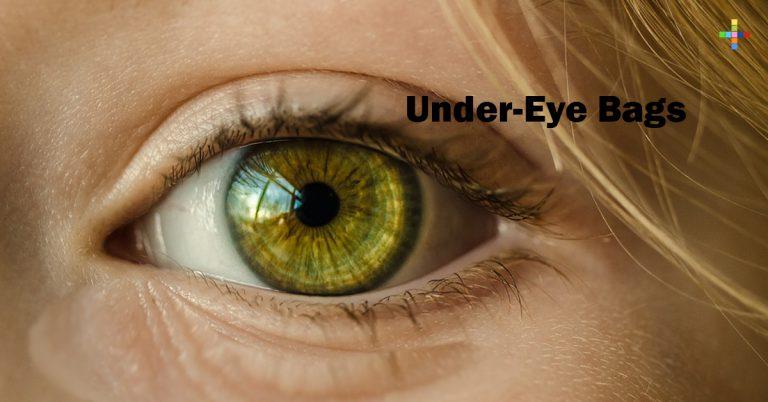Under-Eye Bags