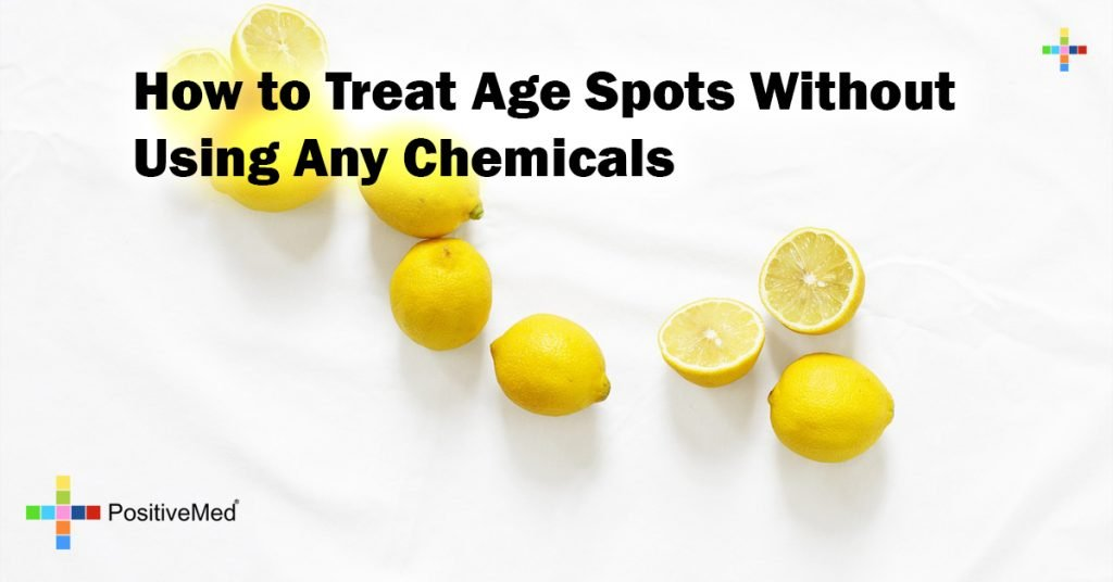 How to Treat Age Spots Without Using Any Chemicals