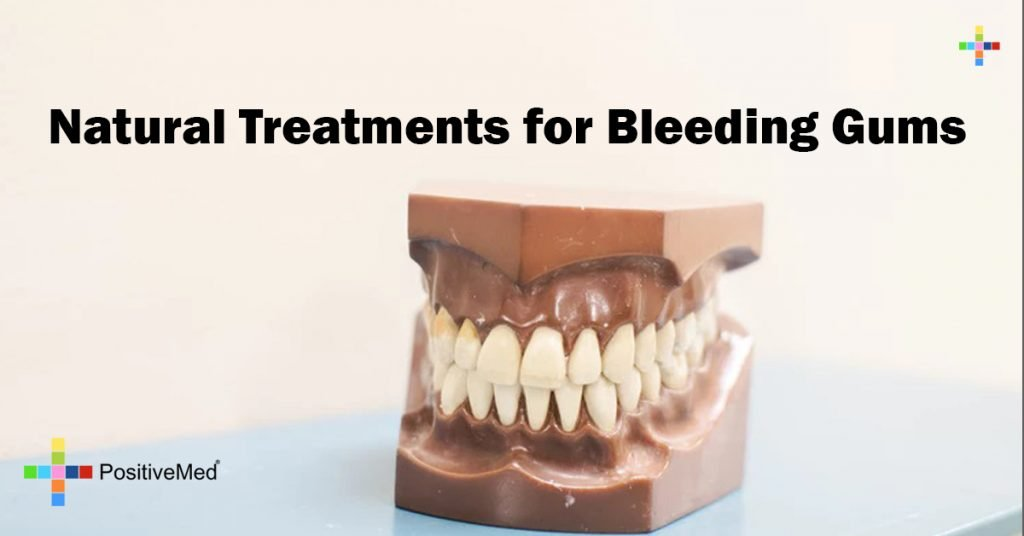 Natural Treatments for Bleeding Gums
