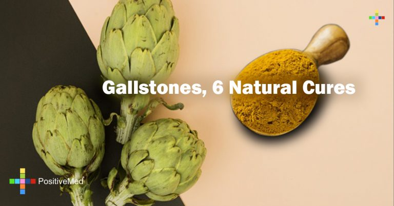 Gallstones, 6 Natural Cures
