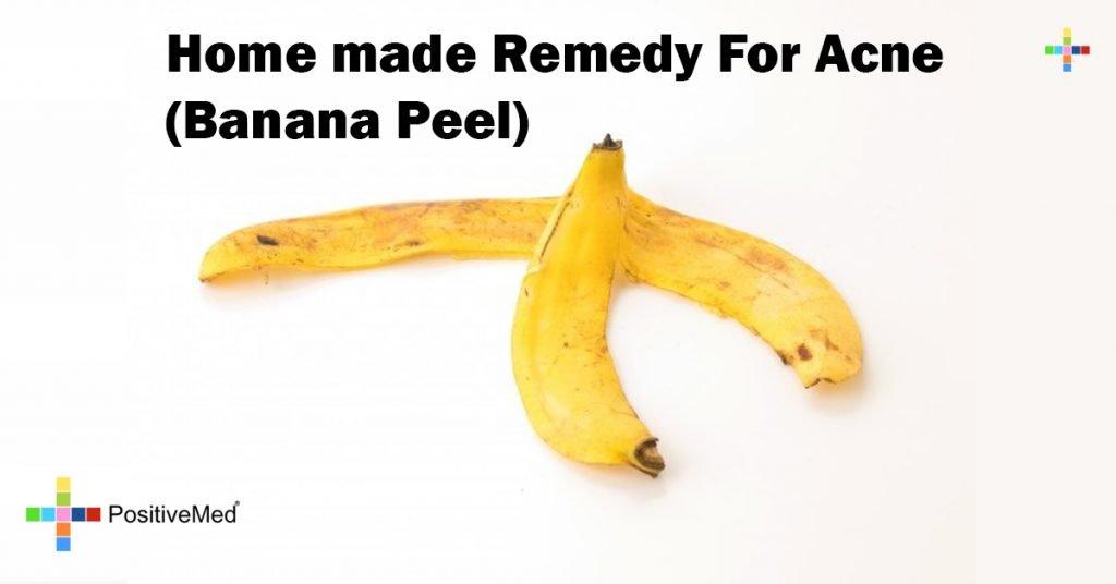 Home made Remedy For Acne ( Banana Peel)