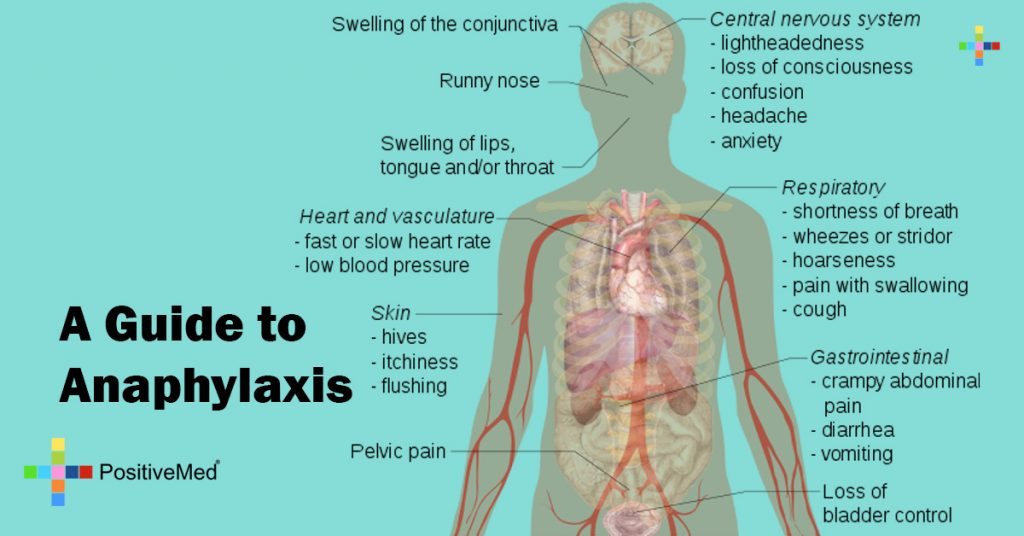 A Guide to Anaphylaxis