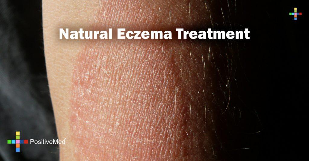 Natural Eczema Treatment