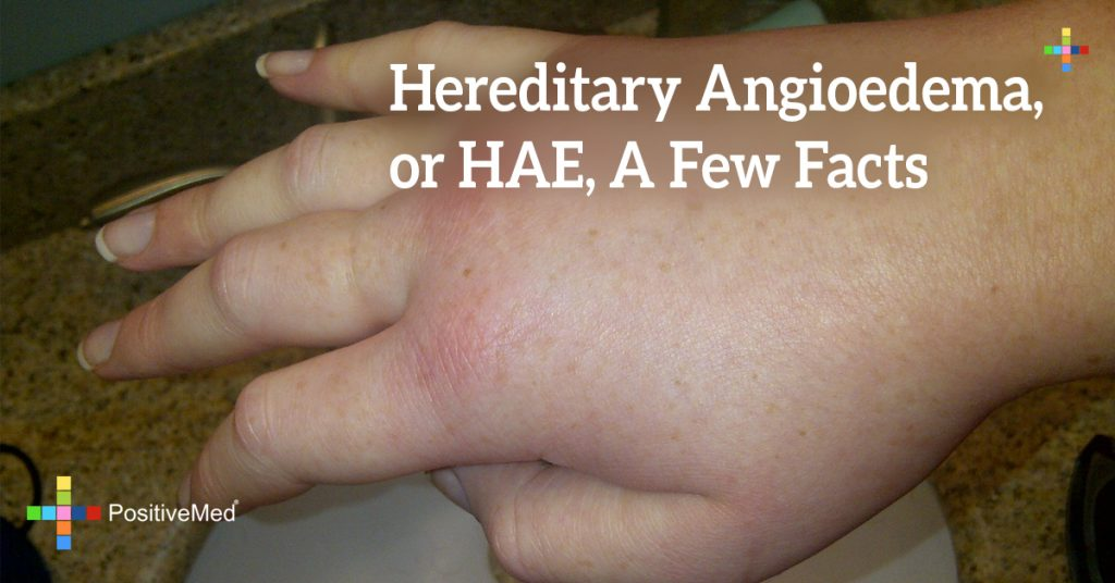 Hereditary Angioedema, or HAE, A Few Facts