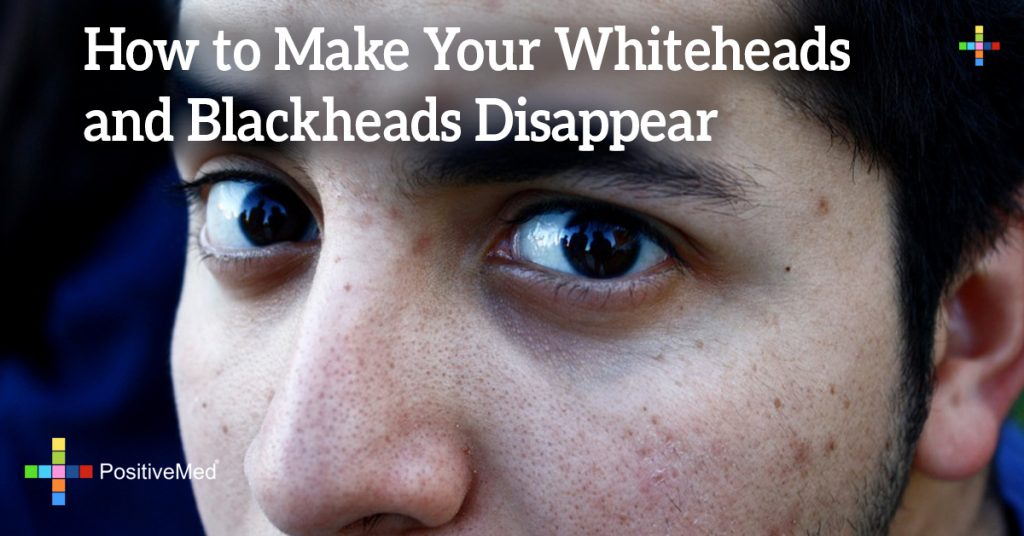 How to Make Your Whiteheads and Blackheads Disappear