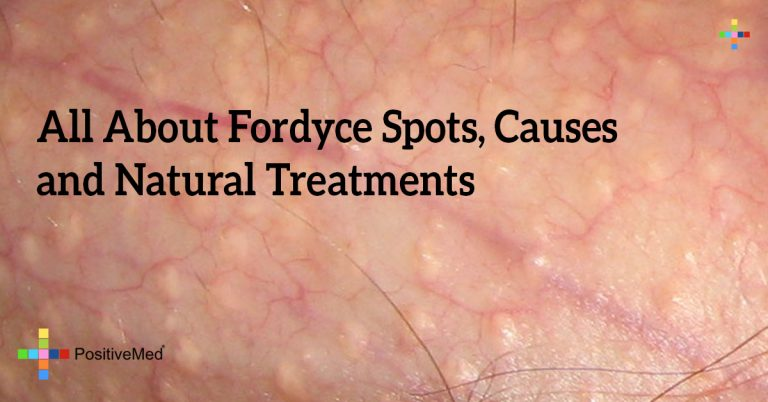 All About Fordyce Spots, Causes and Natural Treatments