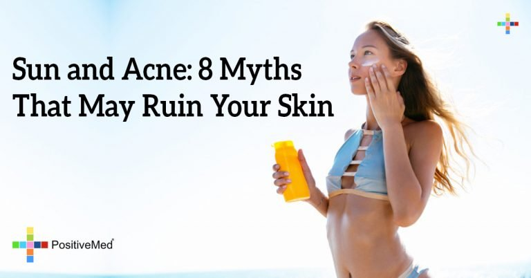 Sun and Acne: 8 Myths That May Ruin Your Skin