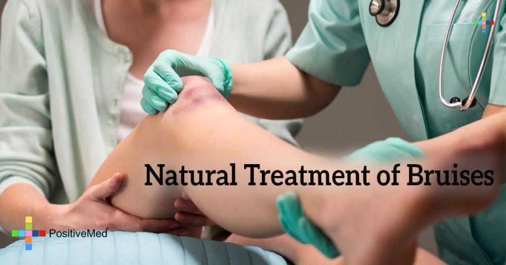 Natural Treatment of Bruises