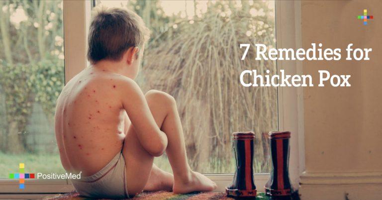 7  Remedies for Chicken Pox