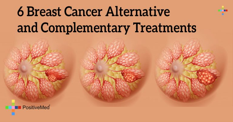 6 Breast Cancer Alternative and Complementary Treatments