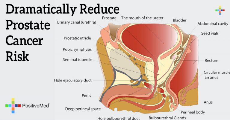 Dramatically Reduce Prostate Cancer Risk