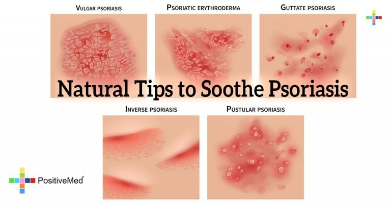 Natural Tips to Soothe Psoriasis