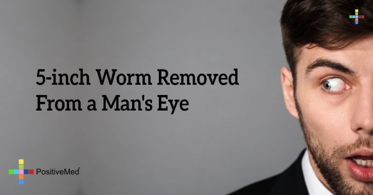 5-inch Worm Removed From a Man's Eye