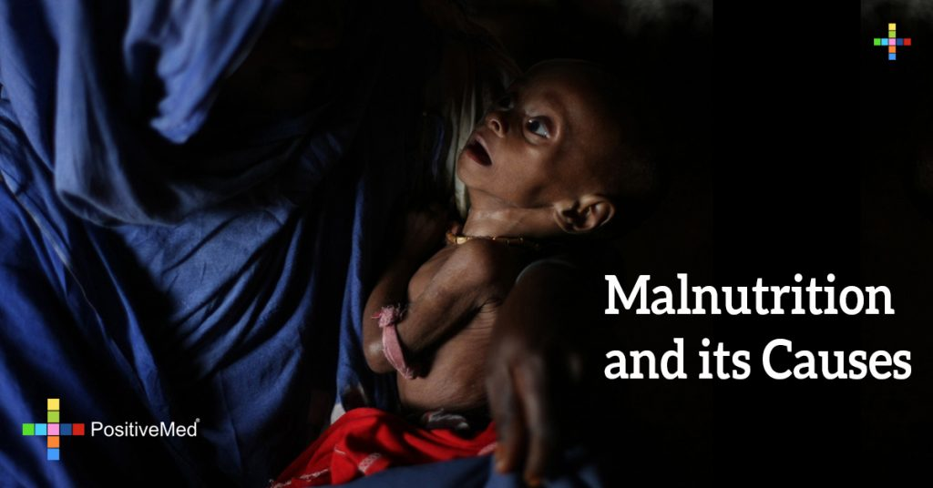 Malnutrition and its Causes