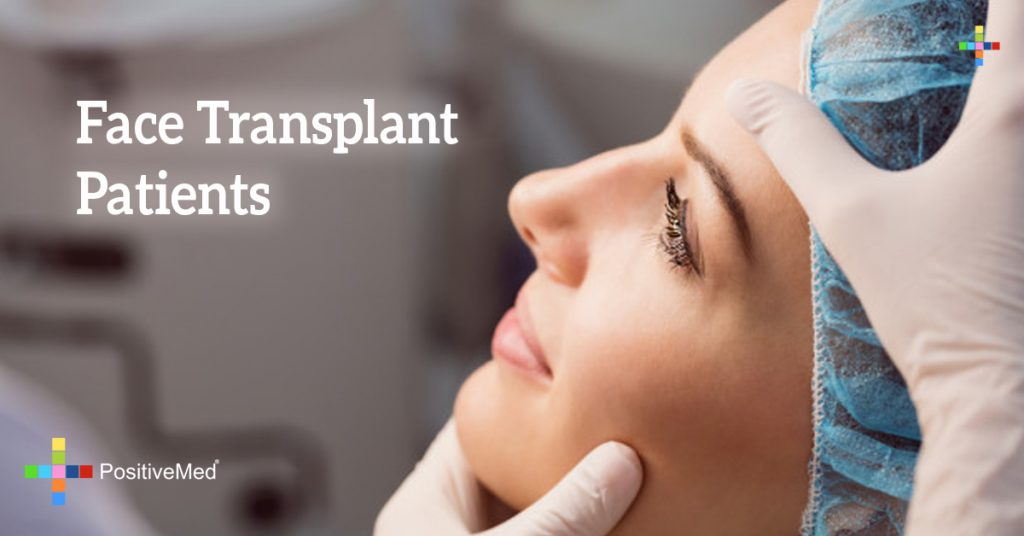 Face Transplant Patients