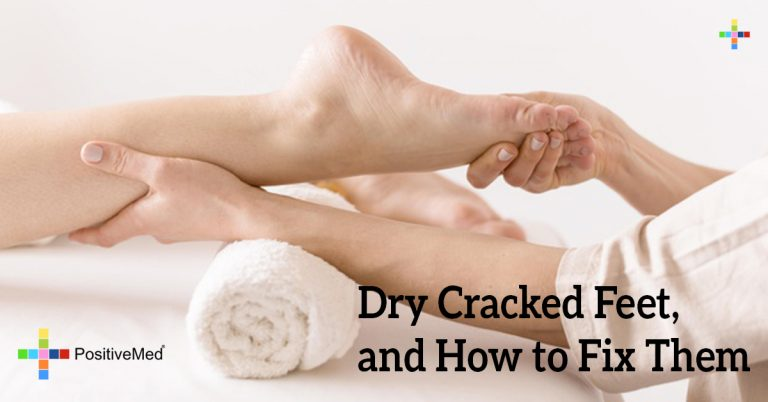 Dry Cracked Feet, and How to Fix Them