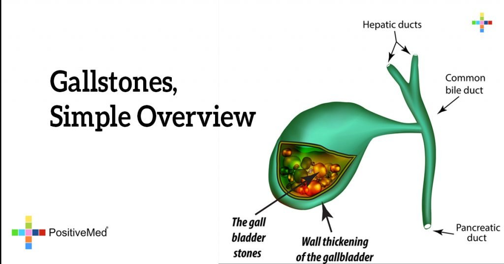 Gallstones, Simple Overview