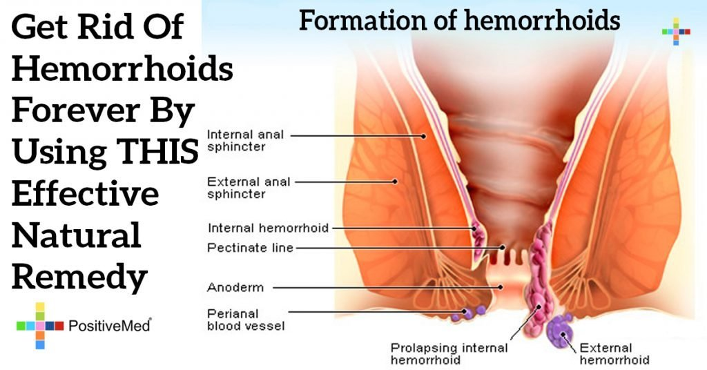 Get Rid Of Hemorrhoids Forever By Using THIS Effective Natural Remedy