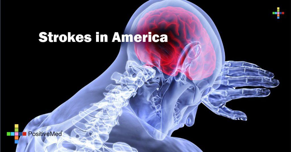 Strokes in America