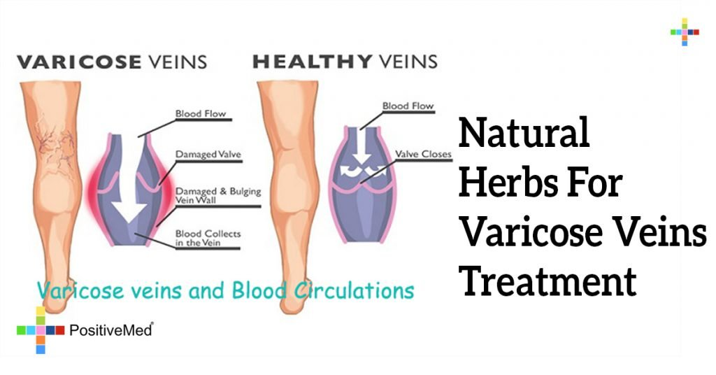 Natural Herbs For Varicose Veins Treatment