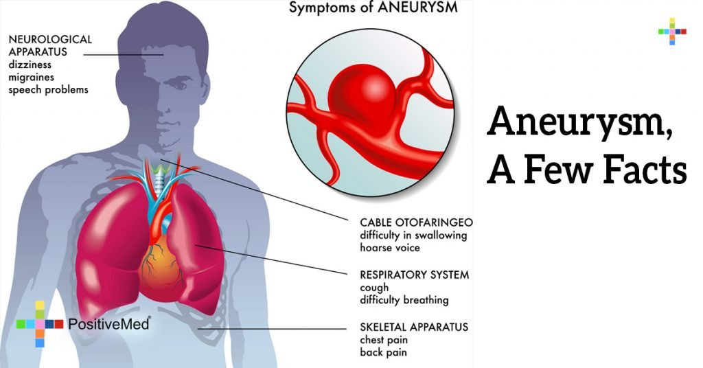 Aneurysm, A Few Facts