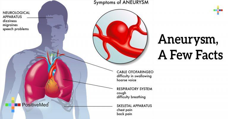 Aneurysm, A Few Facts