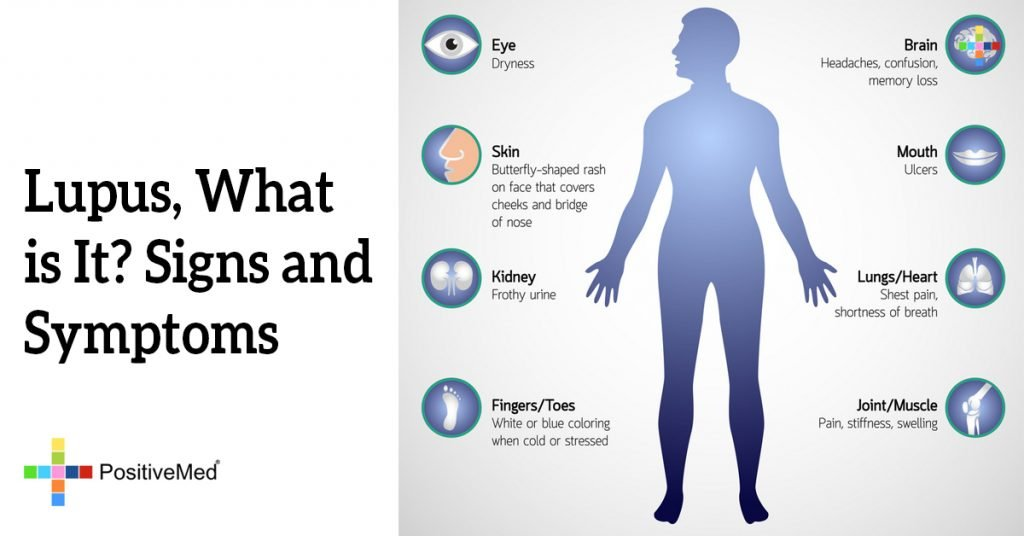Lupus, What is It? Signs and Symptoms