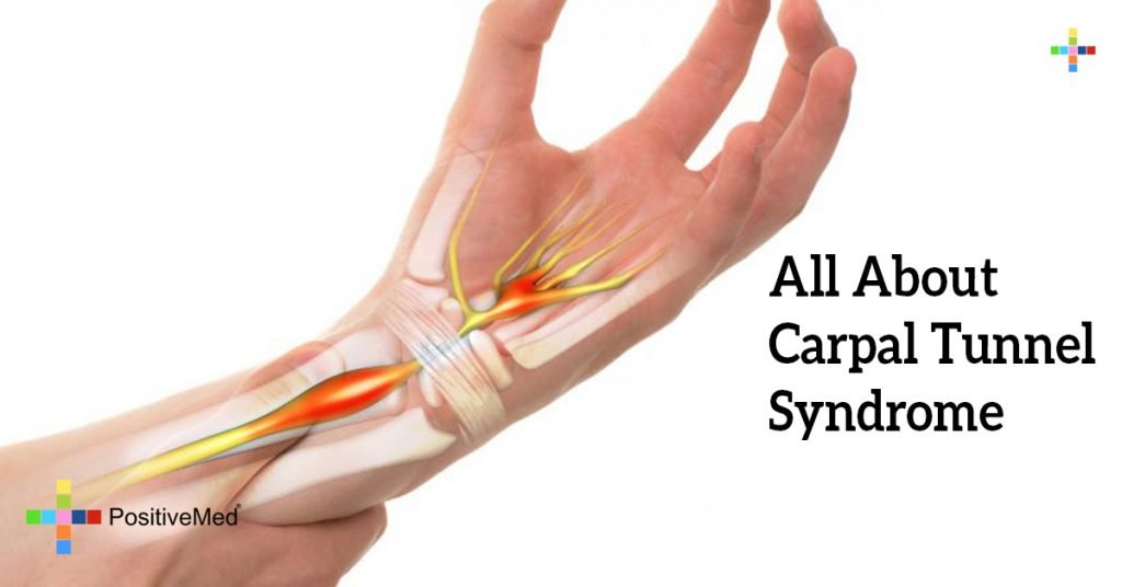 All About Carpal Tunnel Syndrome